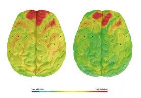 hjerne_1