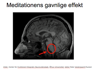 Mindfulness scan